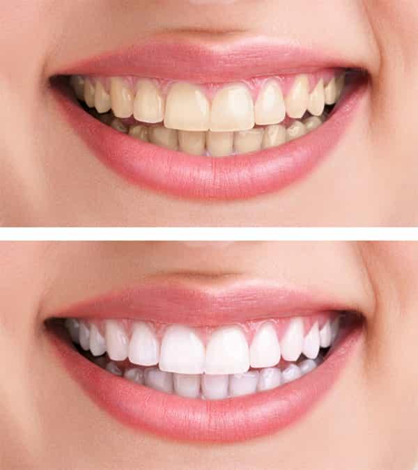 Do Teeth Whitening Kits Really Work