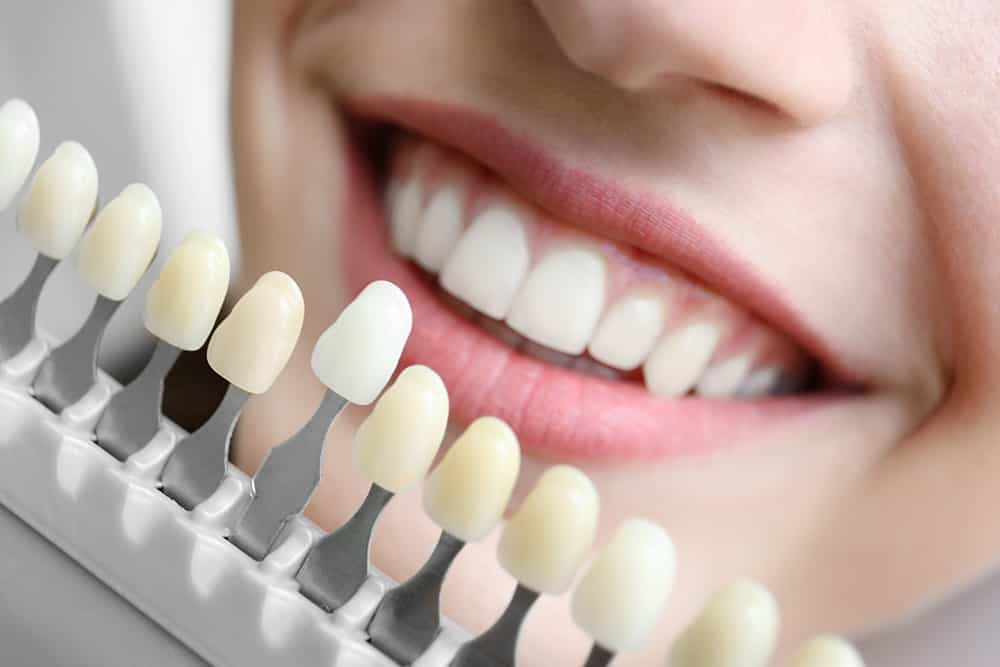 dr shabani is a cosmetic dentist in la crescenta ca offering teeth whitening, veneers, dental implants and more