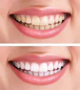 get your teeth whitened in la crescenta by expert cosmetic dentist dr. shabani